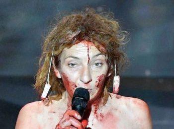 Corinne Masiero : la réaction de son compagnon après son intervention sanglante aux César ?